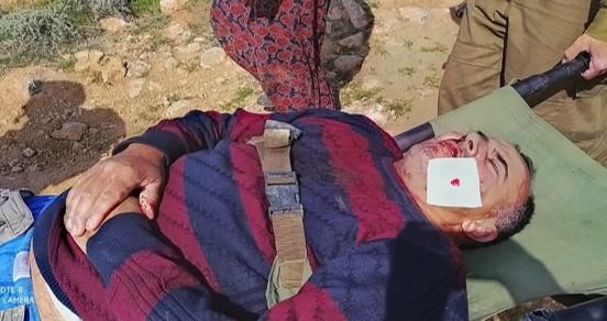 משפחה פלסטינית הותקפו באלימות רבה בידי מתנחלים בדרום הר חברון