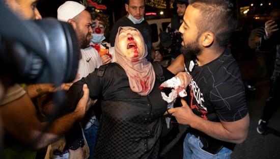 """חד""""ש דורשת לבטל את מצעד הדגלים בי-ם; עשרות עצורים במחאות בחיפה ובנצרת"""